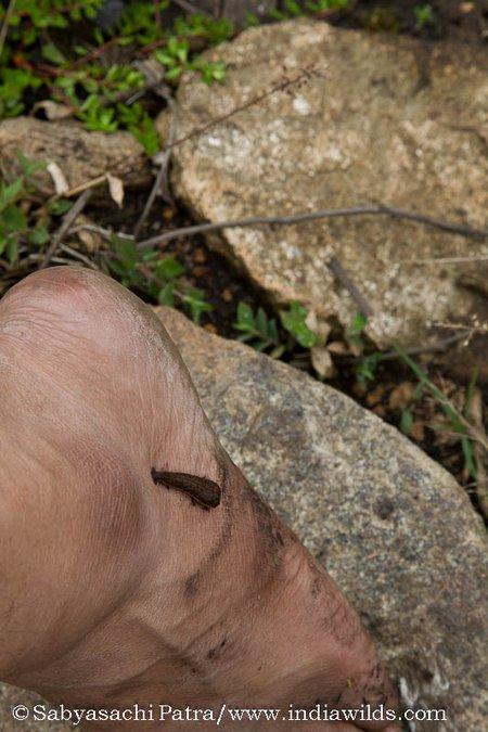 Leech on leg